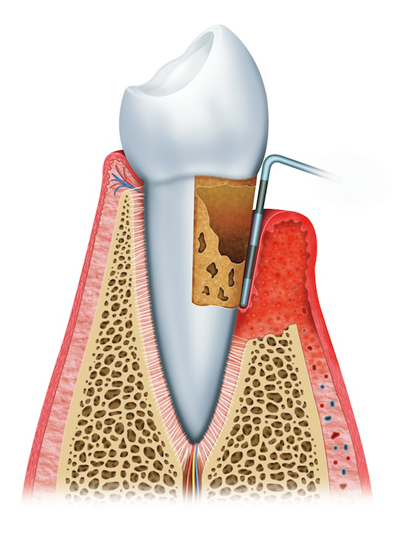 Stages of Gum Disease Wallingford, CT
