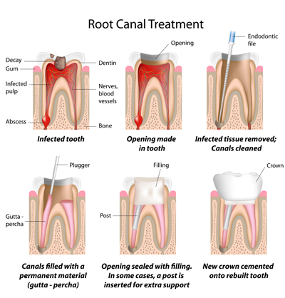 Root Canal Treatment Wallingford, CT