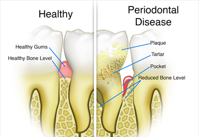 Gum Disease and Tooth and Bone Loss Wallingford, CT