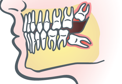 Wisdom Teeth Extraction in Wallingford, CT